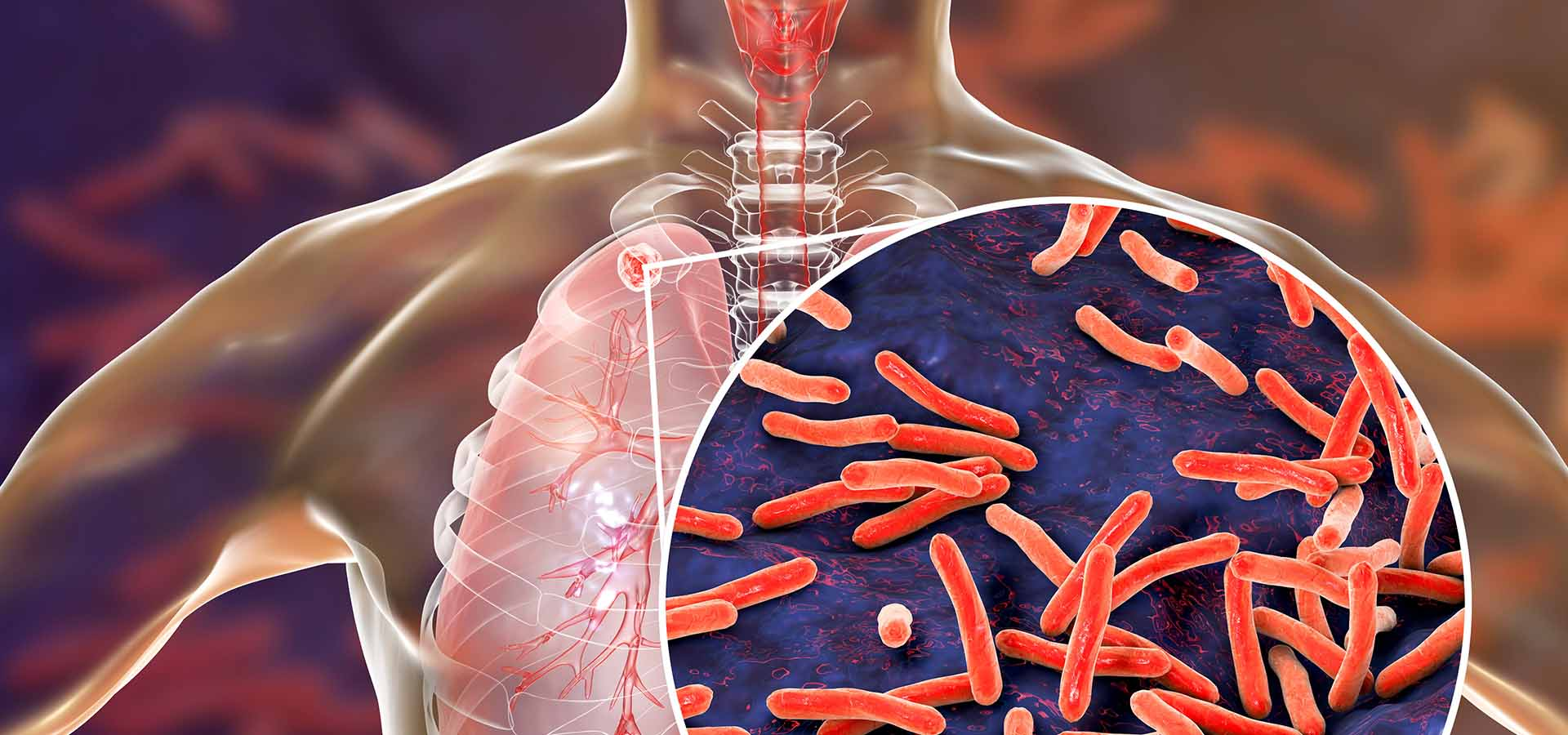 World TB Day: Enhancing Tuberculosis Testing Possibilities in Africa